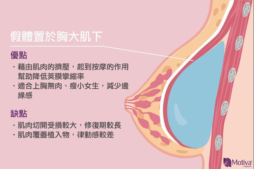 隆乳放胸大肌下的優缺點