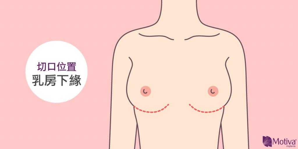 乳下緣切口