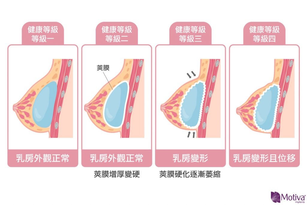 莢膜攣縮程度