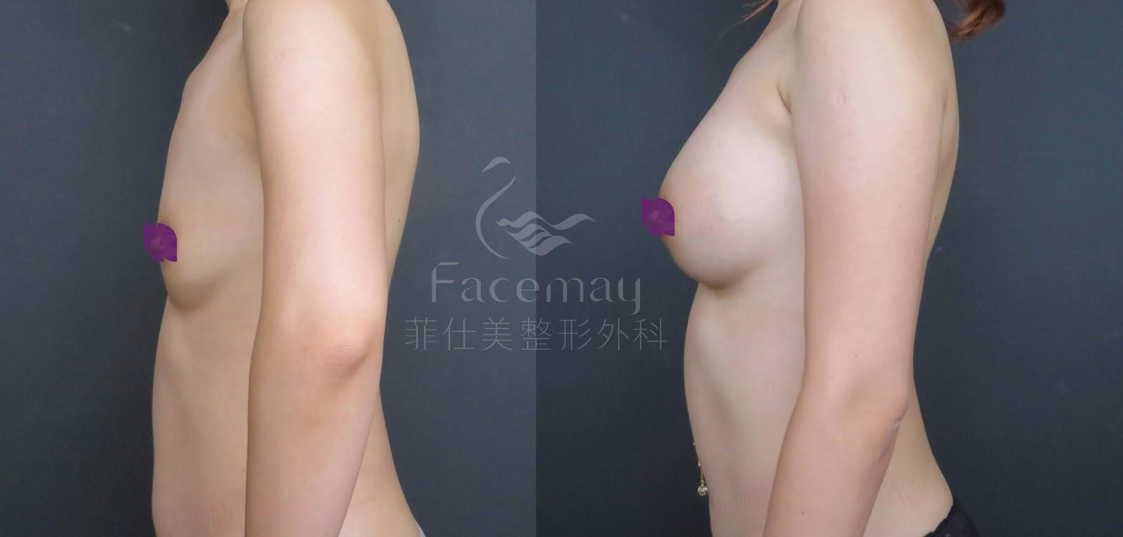 Motiva波力媚(俗稱魔滴)隆乳術前術後比較