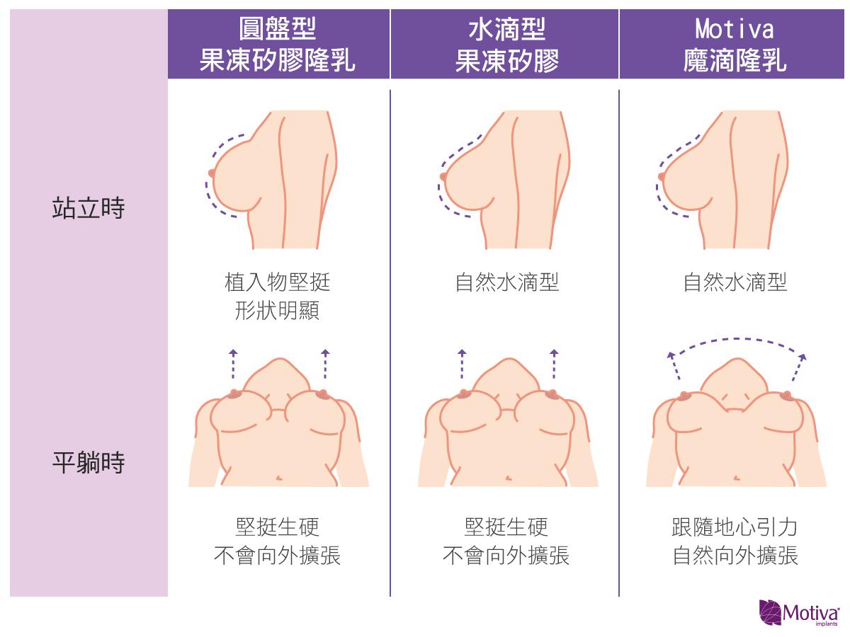 不同隆乳方式在不同情境的比較