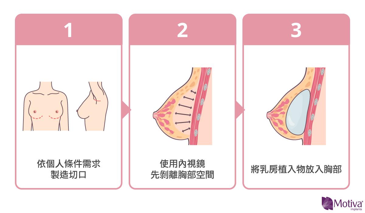 矽膠植入物隆乳