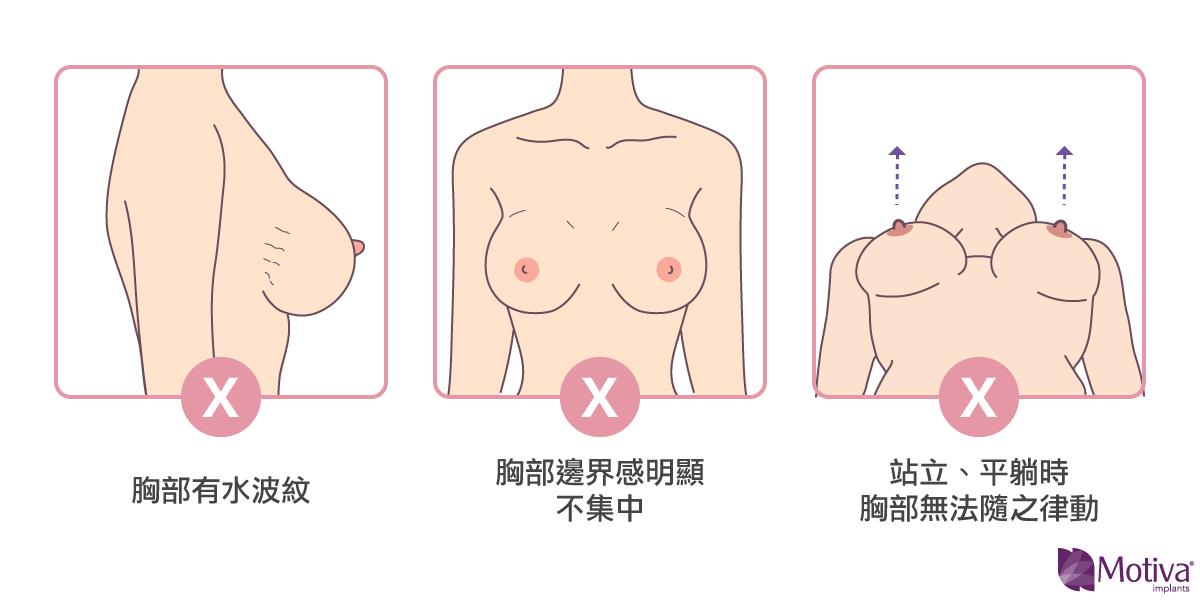 隆乳手術效果不好的原因